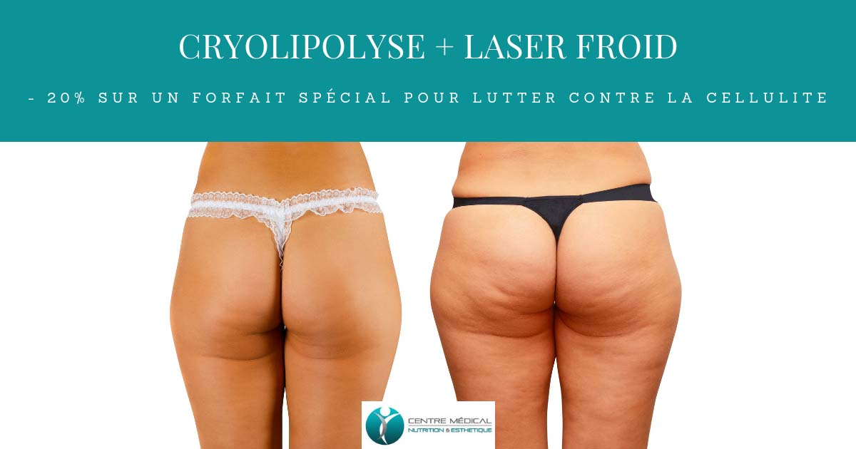 promo-cryolipolyse-et-laser-froid-1