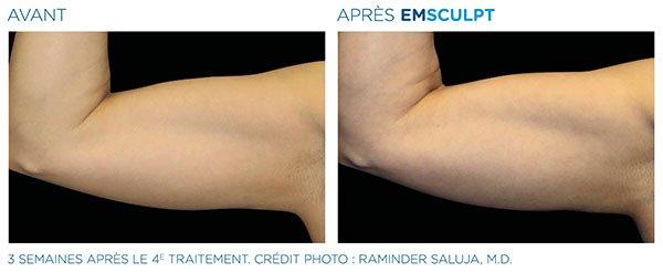 Emsculpt_PIC_Ba-card-female-arms-075_FR100