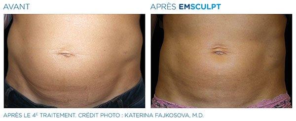 Emsculpt_femme-abdomen